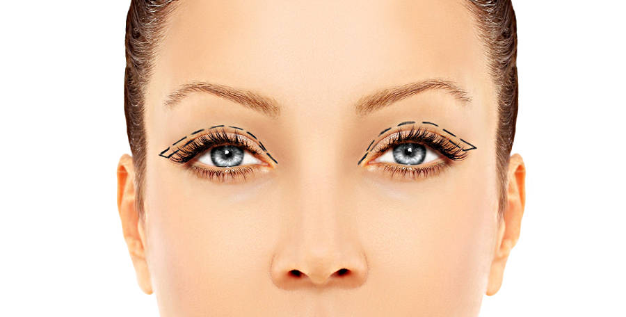 Операции блефаропластика и окулопластика глаз в Москве
