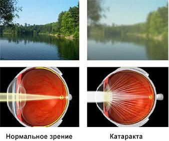 Причины развития катаракты глаза