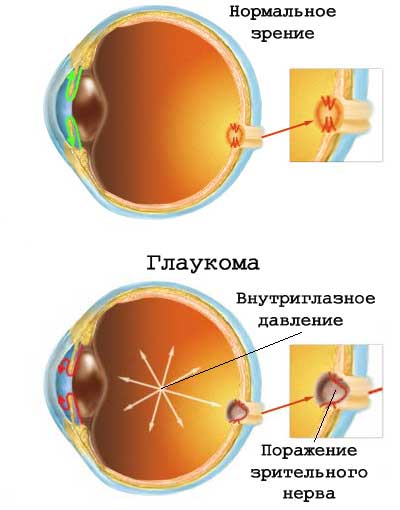 Глазное давление ВГД при глаукоме