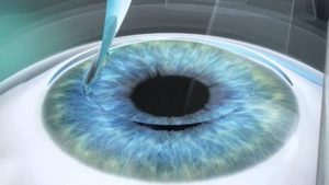 Лучшая клиника по коррекции глаз лазером в Москве