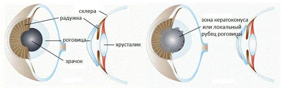 Передняя послойная кератопластика в Москве