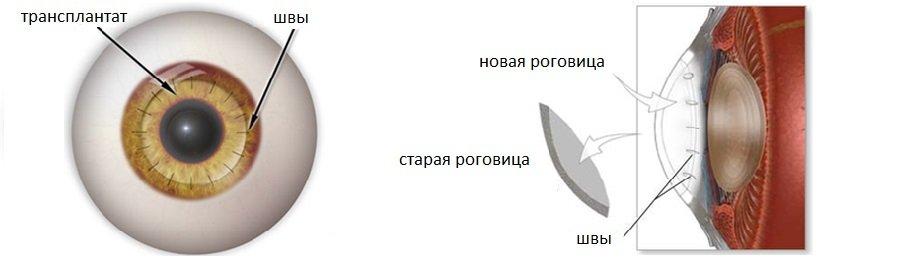 Сквозная кератопластика - ход операции и ее результат