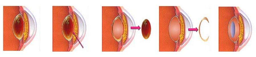 Операция экстракции катаракты