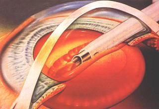 Факоэмульсификация катаракты с имплантацией ИОЛ