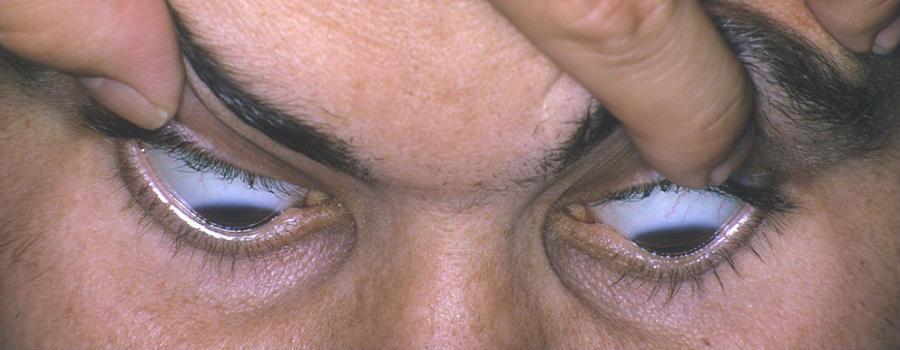 Кератоконус - причины и симптомы