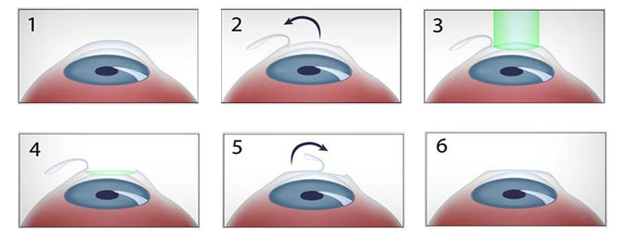 Операция лазерной коррекции зрения ЛАСИК в Москве