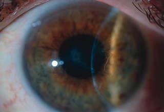 Эндотелиальная дистрофия роговицы глаза (Фукса)