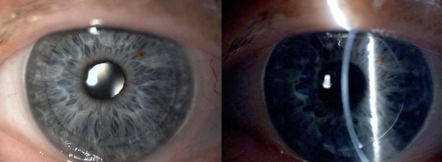 Лечение эпителиально-эндотелиальной дистрофии роговицы глаза (ЭЭД) в Москве