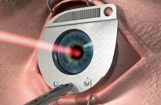 Лазерный хирург