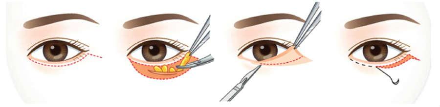 Подтяжка нижних век глаз - лучшая клиника и хирурги