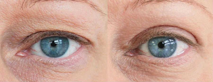Подтяжка верхних век глаз - лучшая клиника и хирурги