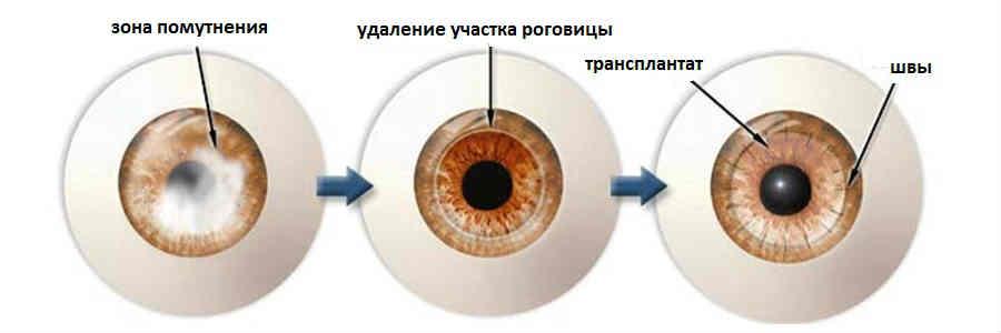 Трансплантация роговицы глаза - лучшая клиника