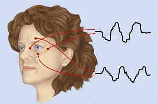 ЭФИ - электрофизиологическое исследование глаз