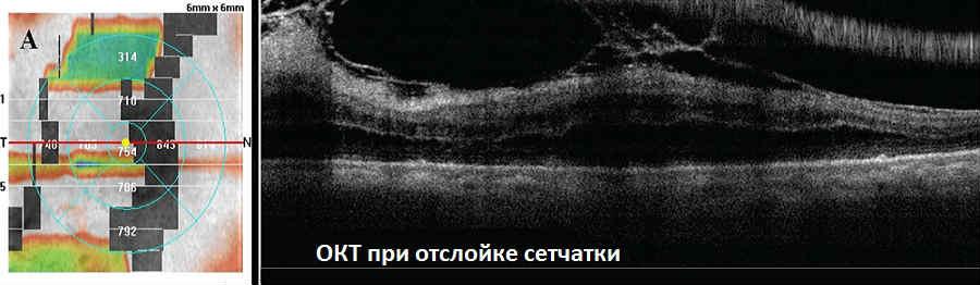 OCT (ОКТ) сетчатки и зрительного нерва