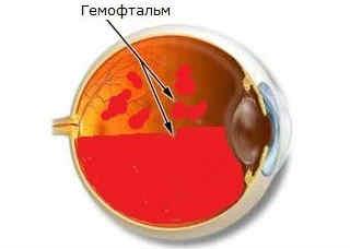Частичный и полный гемофтальм глаза