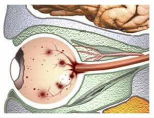 Кровоизлияние в сетчатку глаза - причины и лечение