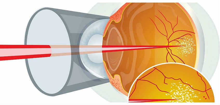 Лазерное восстановление зрения при болезнях глаз