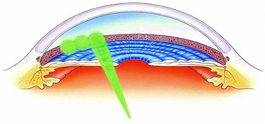 Цены на восстановление зрение лазером