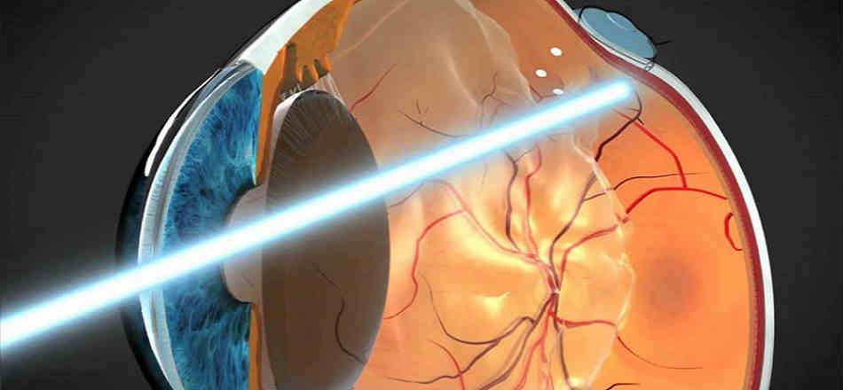 Лечение болезней сетчатки глаза в Москве