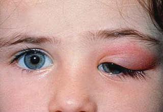 Заболевания слезного аппарата глаза