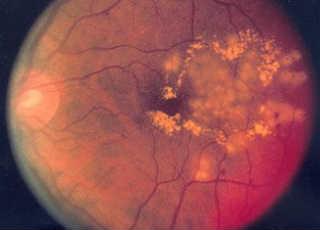 Гипертоническая ретинопатия сетчатки глаза
