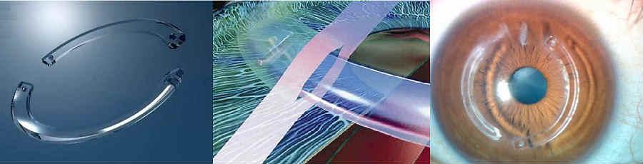 Имплантация роговичных сегментов