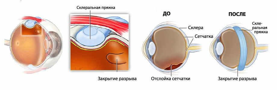 Отслойка сетчатки глаза операция цена