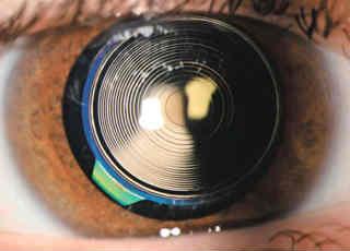 Какой хрусталик лучше ставить при катаракте