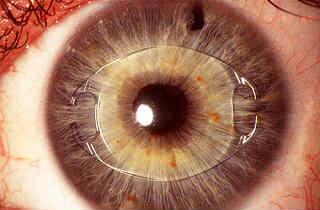 Артифакия глаза что это и как лечить