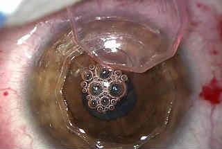 Фемтолазерная кератопластика