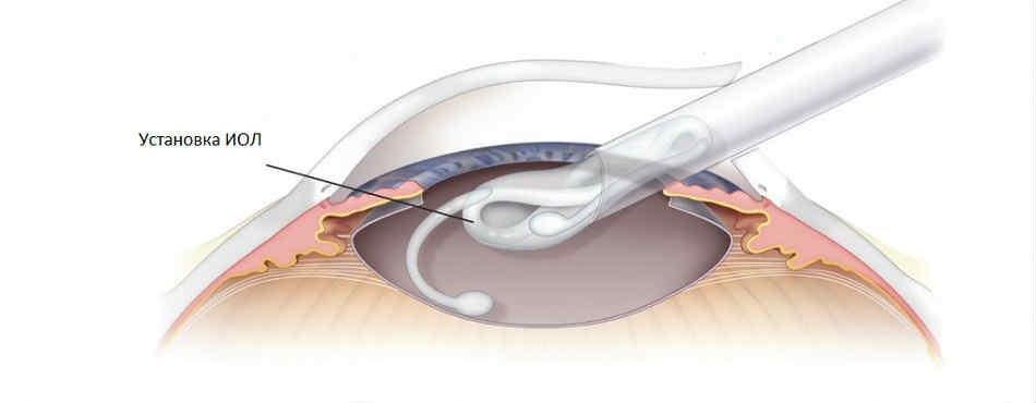 Хрусталик Цейс при катаракте