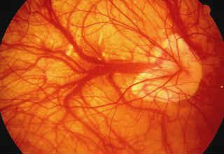 Субретинальная неоваскулярная мембрана