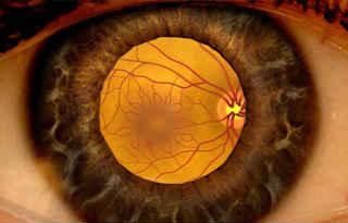 Отечная макулопатия сетчатки глаза