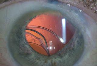 Дислокация ИОЛ после удаления катаракты