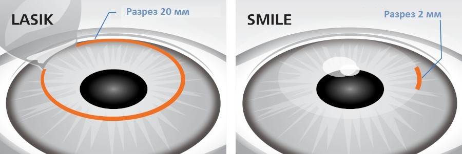 LASIK или ReLEx SMILE - что лучше?