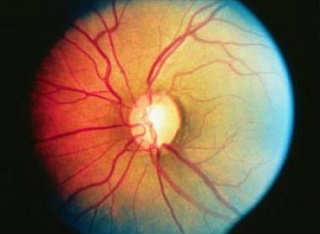 Откытоугольная глаукома