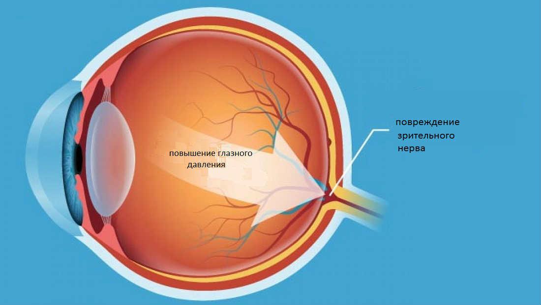 Симптомы вторичной глаукомы