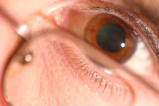 Перенапряжение аккомодации глаза