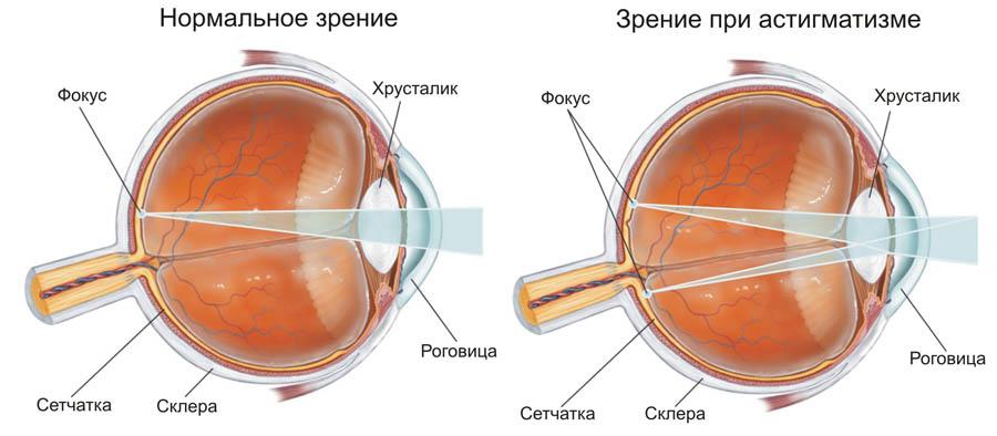 Средства снижающие глазное давление при глаукоме