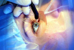 Операции на сетчатке
