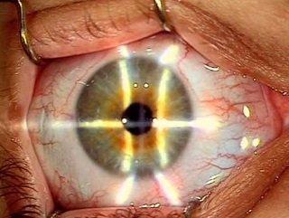 Лазерная коррекция зрения Эпи ЛАСИК
