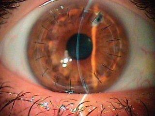 Кератопластика роговицы глаза - операция в Москве