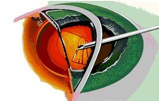 Экстракция катаракты
