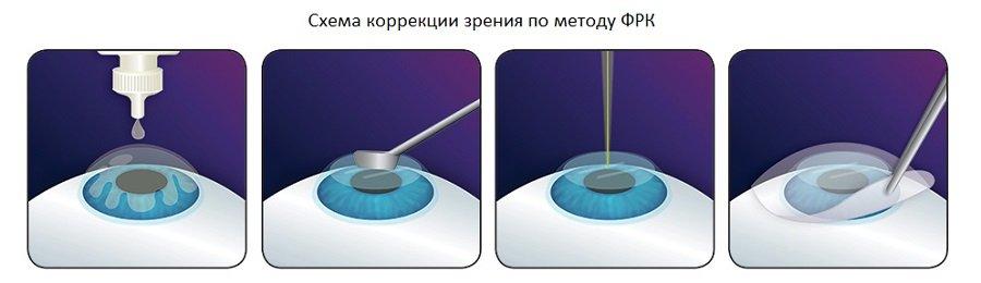 Операция лазерной коррекции зрения ФРК в Москве