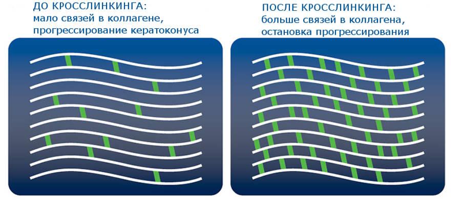 Роговичный кросслинкинг коллагена - лучшая клиника в Москве