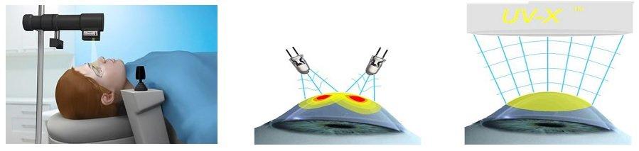 Как проводится кросслинкинг роговицы трансэпительальный