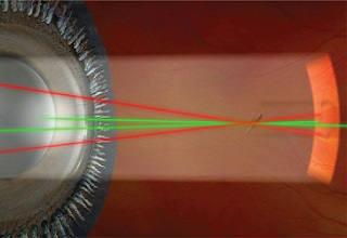 YAG-лазерный витреолизис