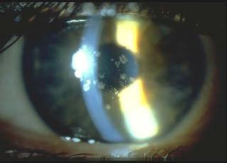 Эндотелиально-эпителиальная дистрофия роговицы глаза (ЭЭД)