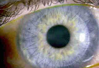 Операция пересадки роговицы глаза