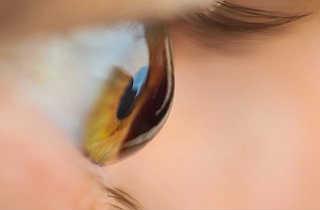 Операции на роговице глаза при кератоконусе